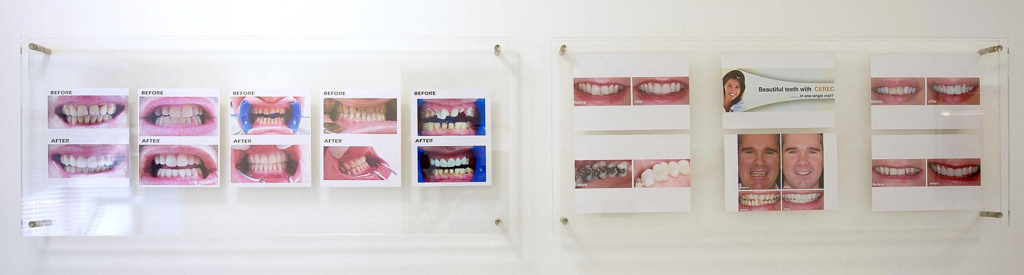 Установка керамических коронок в клинике Pashias Dental Clinic